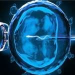 What Is Ivf ???